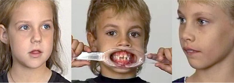 Mouth breathing negatively affect childrens smile, teeth, face