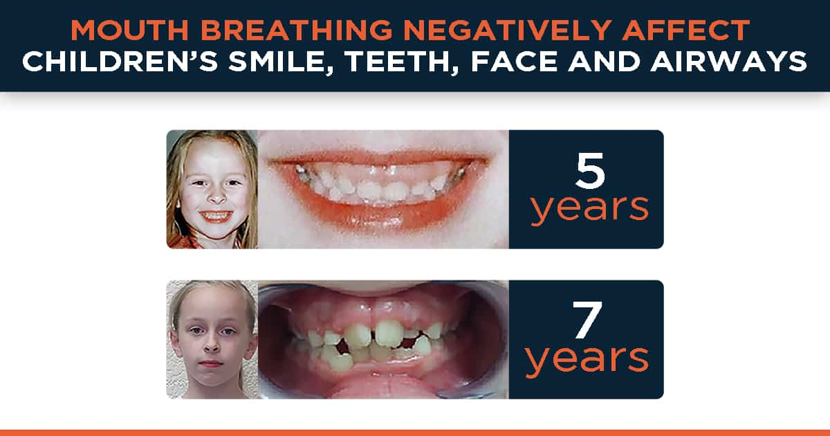 Mouth breathing negatively affect children's smile, teeth, face and airways