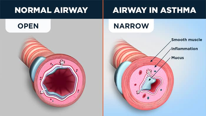 normal vs Inflamed airways